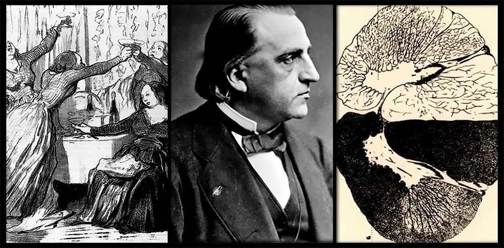 Jean Martin Charcot Treating Mentally Ill Women 1000 dpurb
