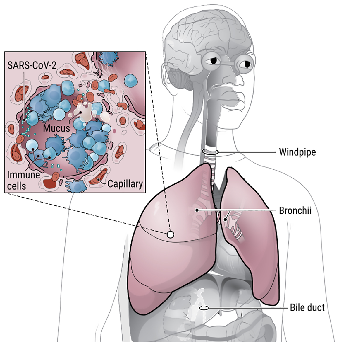 Coronavirus COVID-19 Breathing, lungs, alveoli, immune system